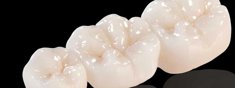 Most porcelanowy – sposób na zdrowy i piękny uśmiech